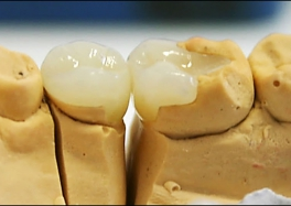 Микропротезирование зубов в Москве