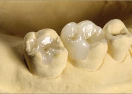 Микропротезирование отсутствующего зуба вкладкамии накладками