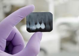 Диагностика в стоматологии