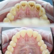 Жемчужная чистка зубов